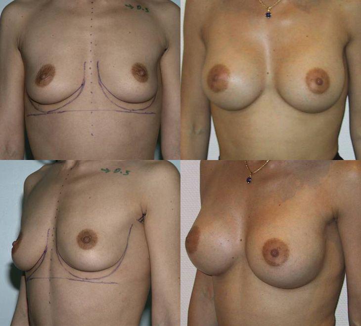 Augmentation mammaire par voie axillaire