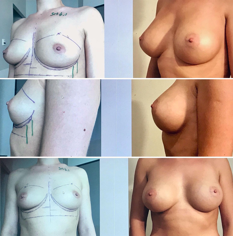 Implants mammaires anatomiques rétro musculaires 335 cc x2 septembre 2018 Dr Marinetti