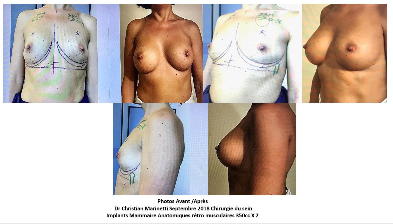 Implants mammaires anatomiques rétro musculaires 350 cc x2 septembre 2018 Dr Marinetti