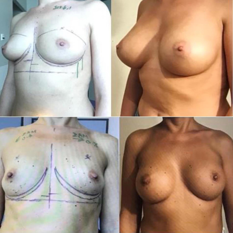 Nouveaux implants anatomiques