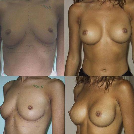 Pourquoi privilégier la voie axillaire pour la pose d´implants mammaires ?