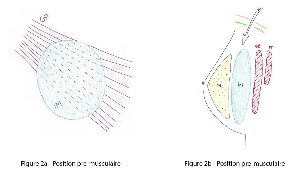 Figure 2a et 2b : position pre musculaire