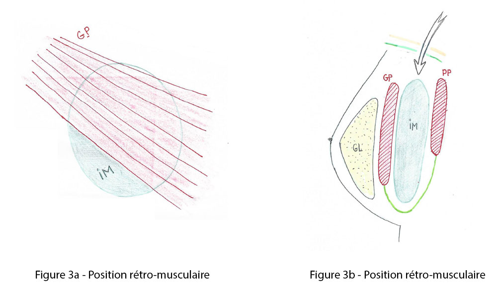 Figure 3a et 3b : position retro musculaire