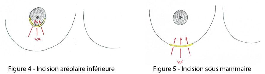 figure 4 et 5 : incision aréolaire inférieure incision sous mammaire