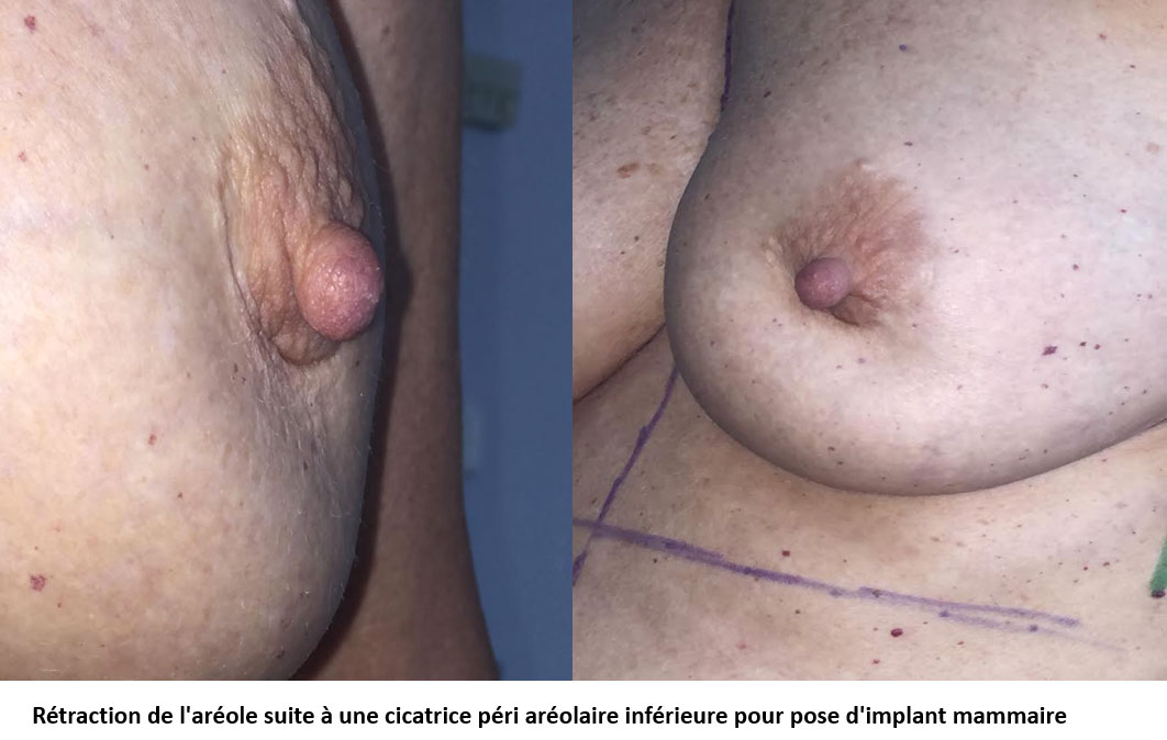 figure 6 : mamelon pique du nez vers le bas
