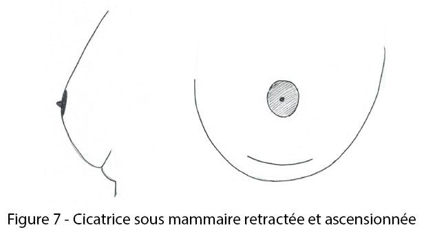 figure 7 : cicatrice sous mammaire rétractée et ascensionnée